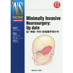 Minimally Invasive Neurosurgery:Up date 脳・神経・外科低侵襲手術の今