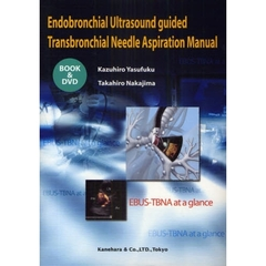 Endobronchial Ultrasound guided Transbronchial Needle Aspiration Manual EBUS-TBNA at a glance